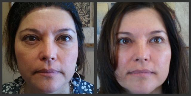 Botox Treatment Results Houston TX
